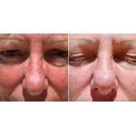 Rosacea Treatments Ulladulla