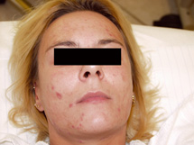 Acne treatment VPL before